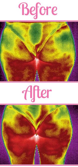 bloedcirculatie verbeteren